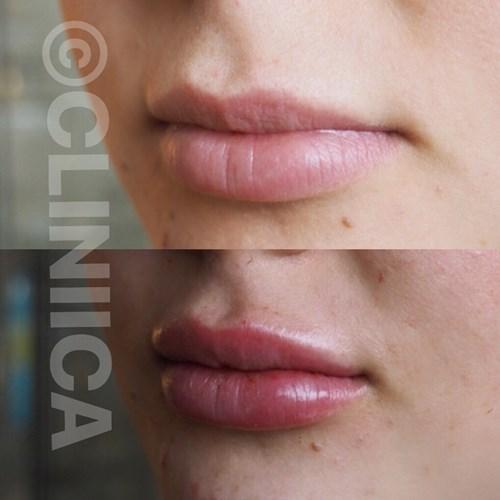 lip fillers göteborg