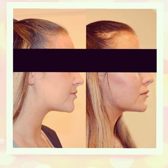ansiktsbehandling nacka forum