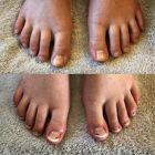 fina fötter säffle